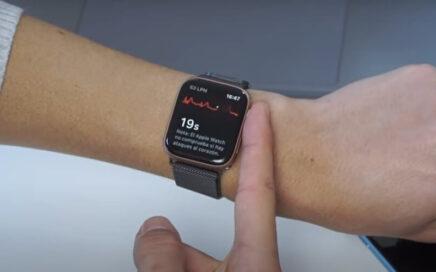 Smartwatch con electrocardiograma