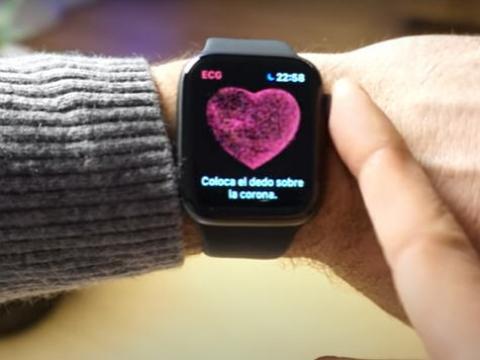 smartwatch con ecg